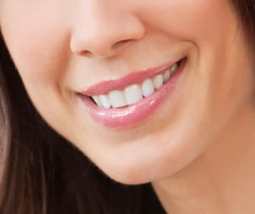Teeth Whitening and Teeth Bleaching: What's the Difference?