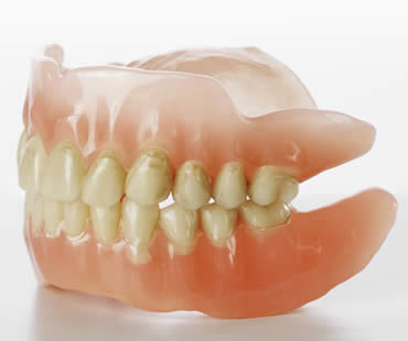 Dental Implants: An Alternative to Dentures and Bridges