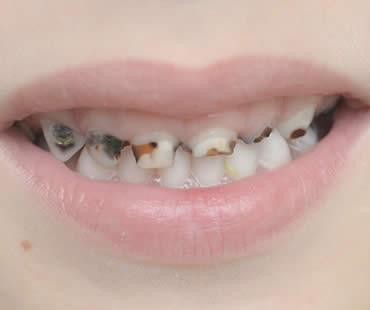 Cavities: Not Just for Kids