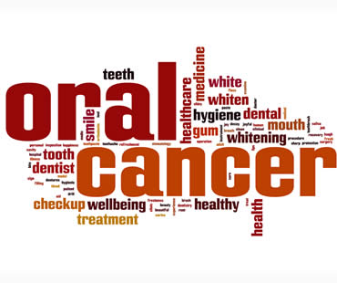Oral Cancer Explained