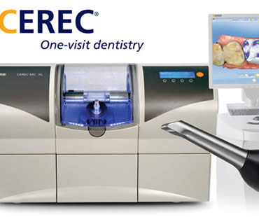 CEREC: The Answers to Frequently Asked Questions